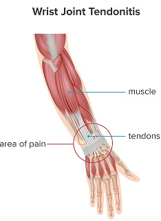 knife accident Tendonitis from continuous cutting